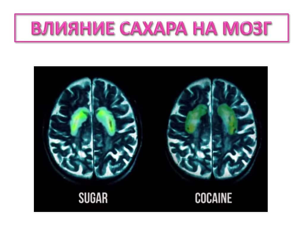 Влияние сахара на организм человека, Чем опасен сахар, Ученые выяснили чем опасен сахар, ЧТО ОПАСНЕЕ: САХАР ИЛИ КОКАИН, Сахарная наркомания доказана Учеными, Сахарная наркомания доказана Учеными, Пагубное влияние сахара на здоровье человека, Влияние сахара на здоровье кожи и молодость, Чем опасно употребление сахара для детей, вреде белого сахара, зависимости от сахара